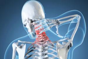 صدمات شلاقی ناحیه گردن