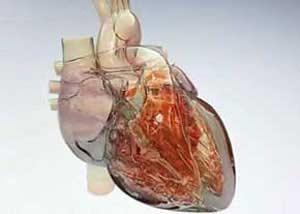 سکته هاي قلبي در زنان