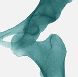 شکستگی استخوان ران و لگن
