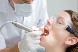 جرم دندان, مسواک زدن