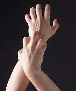 درمان خارش پوست, علل خارش بدن, انواع بیماری پوستی