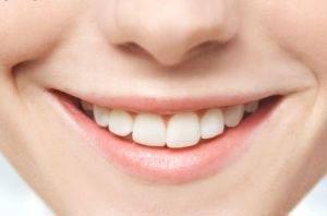 آرزو دارید دندانهایتان مثل هالیودی ها زیبا باشد؟