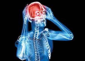 تاثیر منفی, عوامل سردرد, پیشگیری از سردرد
