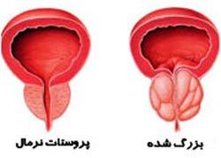 سرطان پروستات, پروستات درمان, بیماری پروستات