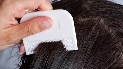 شپش مو, درمان شپش موی سر