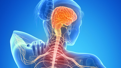 علت بروز تاری دید, سکتههای مغزی