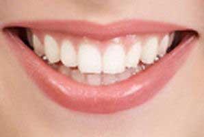 سفید کردن دندان را اینجا بیاموزید