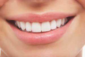 سفید کردن دندا ها,راههای سفید کردن دندان ها