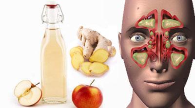 گياهان دارويي براي سينوزيت