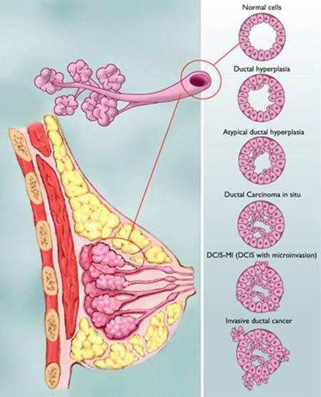 تغییر اندازه و تغییرات پستان زنان که باید جدی گرفت