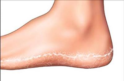 نتیجه تصویری برای روش های طبیعی ازبین بردن خشکی پا