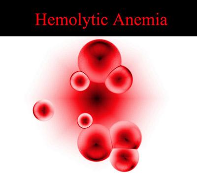 کم خونی همولیتیک, بیماری همولیتیک