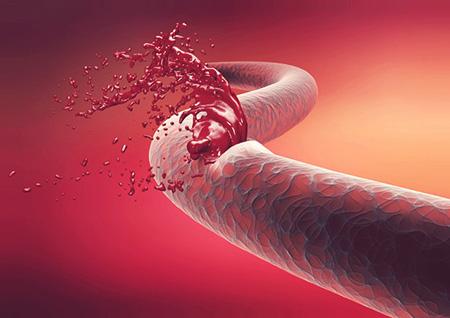 درمان بیماری هموفیلی,اطلاعاتی در مورد بیماری هموفیلی