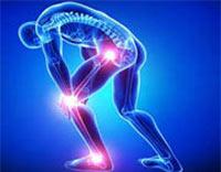 آرتروز,بیماری آرتروز,پیشگیری از بیماری آرتروز