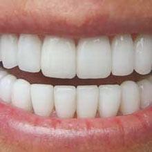 دندان درد,التهاب لثهها,نشانه های پوسیدگی دندان