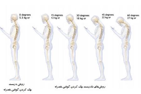 گردن,آسیب مهره های گردنی,دیسک گردن