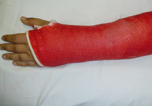 شکستگی مچ دست,پیشگیری از شکستگی مچ دست,پیشگیری از شکستگی استخوان