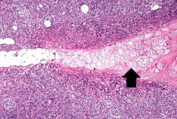 سرطان سینه,توده های سینه,علائم سرطان سینه