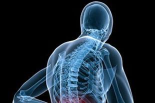 قوز کمر, پیشگیری از قوز کمر,درمان قوز کمر