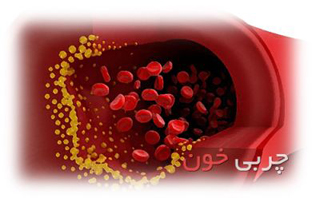 درمان چربی خون,چربی خون, علائم چربی خون, پیشگیری از بیماریها, کنترل چربی خون, چربی های اشباع شده, نشانه های چربی خون, چربی های اشباع نشده, پیشگیری از چربی خون, چربی های غیر اشباع,