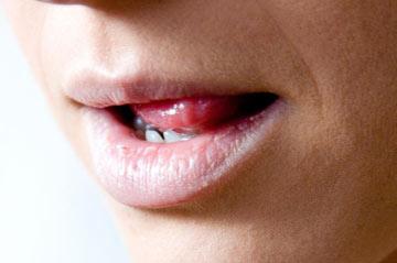 خشکی دهان, درمان خشکی دهان, علت خشک شدن دهان