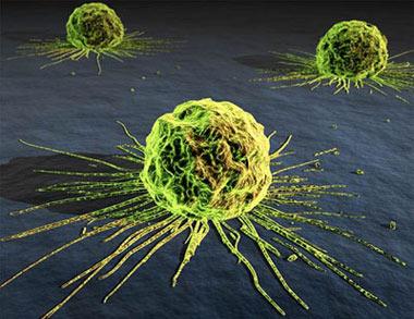 سرطان, علل سرطان, پیشگیری از سرطان