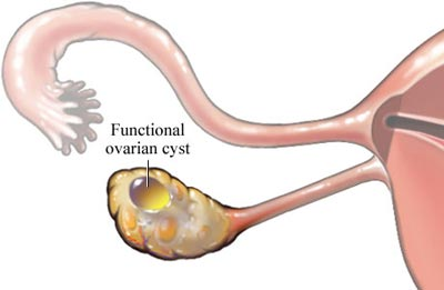 کیست تخمدان,پیشگیری از کیست تخمدان,درمان کیست تخمدان