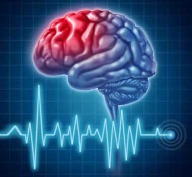 توصیه هایی برای پیشگیری از سکته مغزی