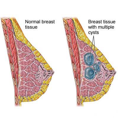 کیست سینه, علائم کیست پستان, علائم کیست سینه