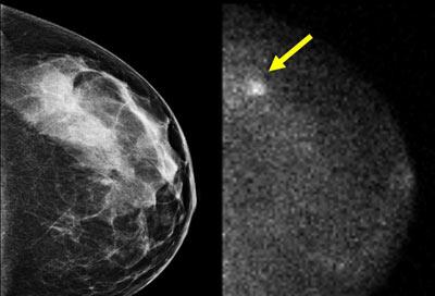 جراحي سرطان سينه,سرطان سينه, پرتودرماني براي درمان سرطان سينه