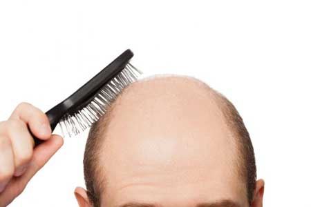 کچلی پوست,کچلی مو,علت کچل شدن پوست