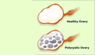 hhh1670 آنچه زنان باید درباره سندرم تخمدان پلی کیستیک بدانند