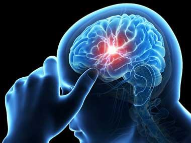 عوارض سکته مغزی, پاره شدن رگهای مغز, پیشگیری از بیماریها,سکته مغزی, دلیل سکته مغزی, انواع سکته مغزی, علل سردرد شدید, علائم سکته مغزی, نشانه های سکته مغزی
