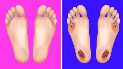 گرفتگی عضلات پا,نشانه های بیماری, علت بی حسی در پاها