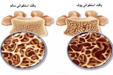 بیماریهای زنان,علل ابتلا به پوکی استخوان,علائم پوکی استخوان در زنان