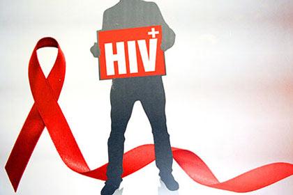 اطلاعاتی کامل درباره بیماری ایدز/ آیا افراد مبتلا به ایدز می توانند ازدواج کنند؟
