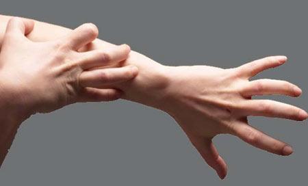 علت خارش پوست دست,خشکی پوست دست,خارش پوست دست