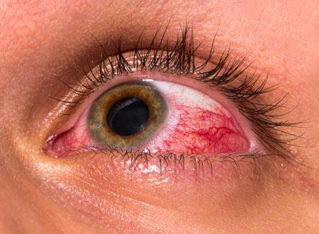 پوست,بیماری های پوستی,قرمز شدن پوست