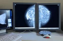 ماموگرافی,ماموگرافی چیست,آزمایش ماموگرافی