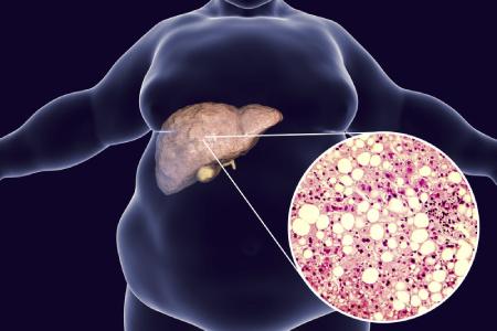 رژیم غذایی برای کبد چرب,عوارض کبد چرب