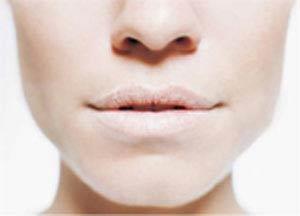 خشکی دهان,علت خشکی دهان,درمان خشکی دهان