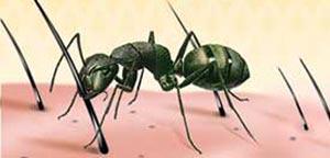 مورچه,روغن مورچه,رفع موهای زائد با روغن مورچه
