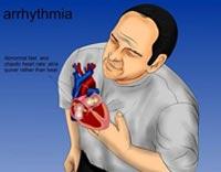 سکته قلبی,علائم سکته قلبی, رایج ترین علامت حمله قلبی