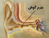 جرم گوش,چگونگی پاک کردن جرم گوش,سرومن چیست