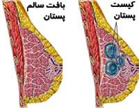کیست پستان,کیست سینه,علائم کیست پستان