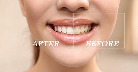 علت زرد شدن دندان ها,علت  بدرنگ شدن دندان ها,راههای سفید کردن دندانها