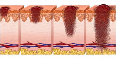 سرطان پوست,علائم سرطان پوست,نشانه های سرطان پوست