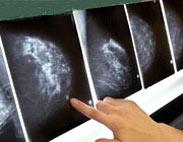 بیماریهای زنان,سرطان سینه,ماموگرافی سینه