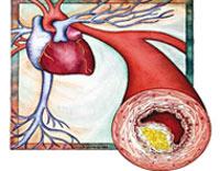 کلسترول,انواع کلسترول,روشهای افزایش HDL خون