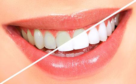 سفيد کننده دندان